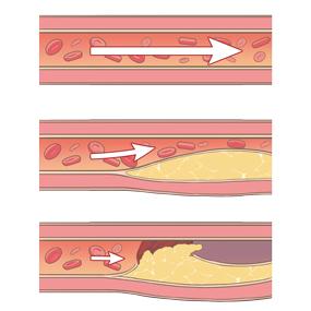 clogged-blood-vessels-thumbnail[1]