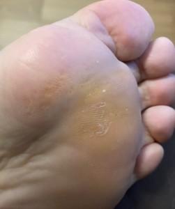 治りかけの足イボ